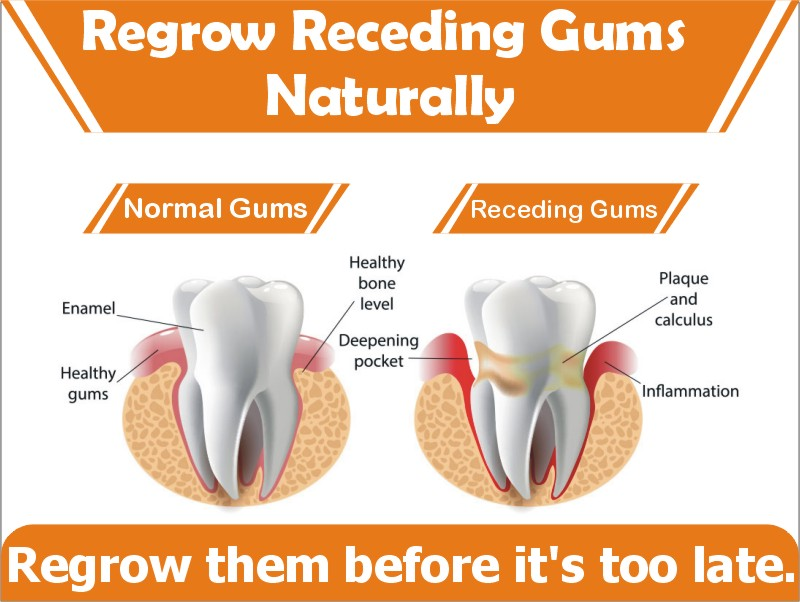 How To Regrow And Stop Receding Gums Naturally